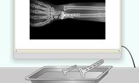 Chirurgie du bras