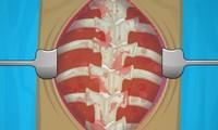 Chirurgie du dos pour scoliose